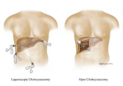 Laparoscopic versus open procedure.