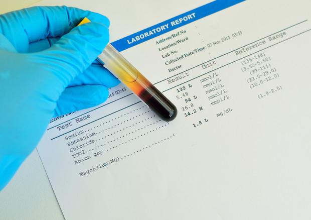 Esame del sangue: ne basta uno per predire 8 forme di tumore