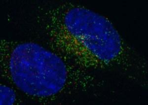 Cancro, scoperta centralina energetica: lo studio è firmato da due scienziati italiani. Ora i farmaci
