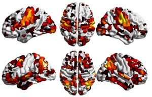 Cervello, trovata la 'culla' della schizofrenia: E' il primo passo per programmare terapie farmacologiche più mirate