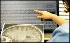 Scoperto un farmaco che blocca patologia neurodegenerativa simile a quella di Alfie Evans. Test anche al Bambino Gesù