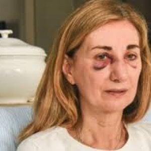 """Padova, mamma ruppe il naso alla prof del figlio: lui è stato bocciato. """"L'ho picchiata ma mi ha provocato"""""""