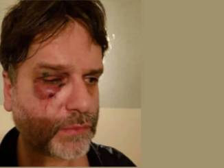 kiev Aggressione xenofoba a Kiev: medico italiano riempito di botte Politica Prima Pagina
