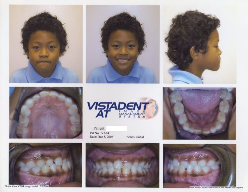 patient during orthodontic treatment