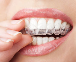 Invisalign can straighten your teeth