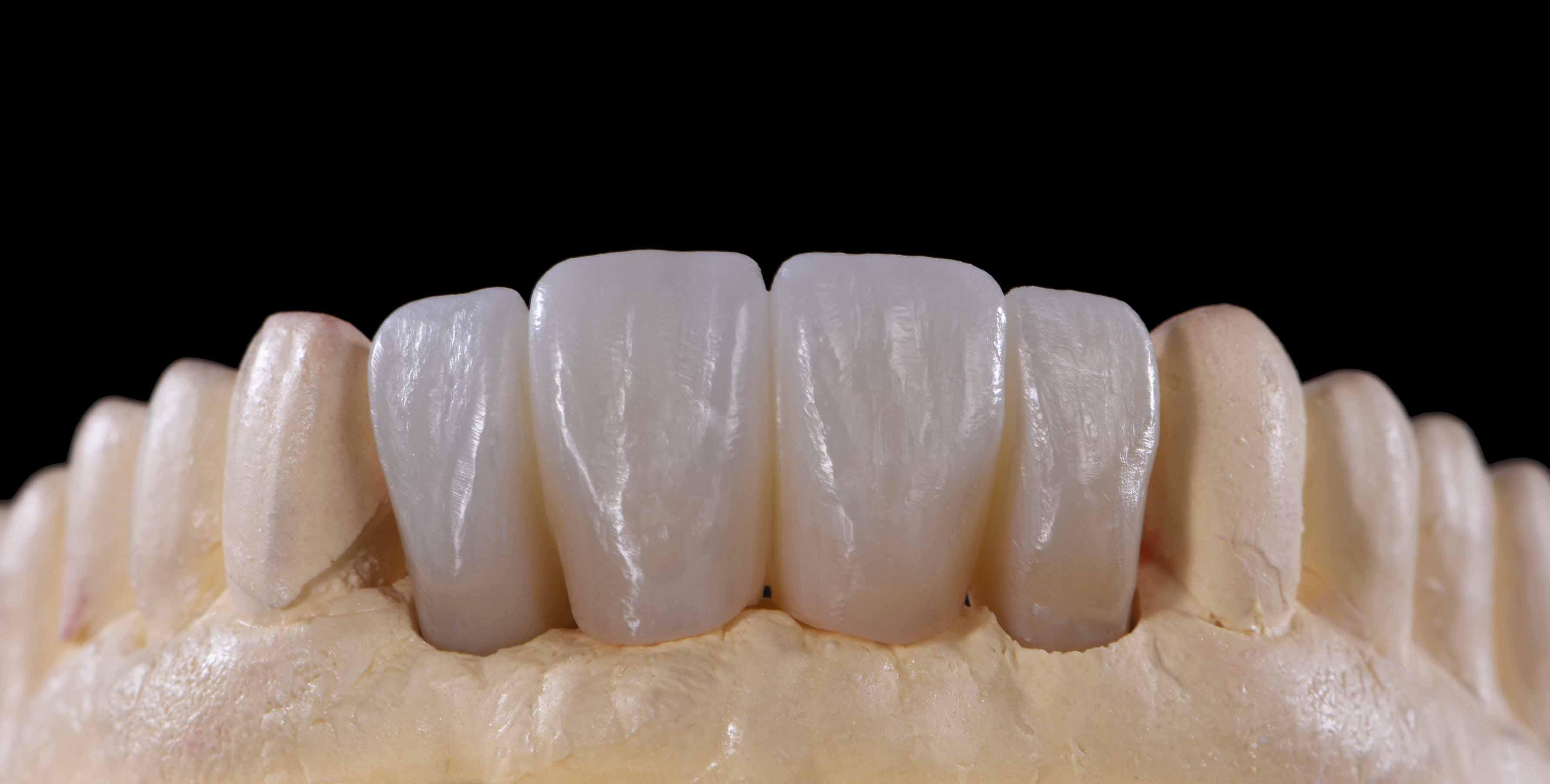 Aesthetic All-Ceramic Restoration - Crystal Dental Design