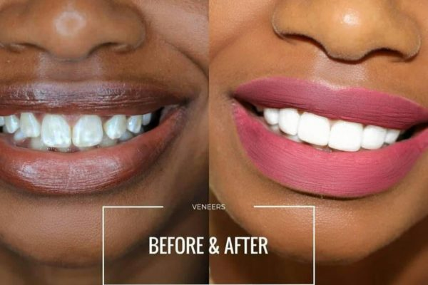 Teeththth