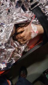 Victima a suferit arsuri