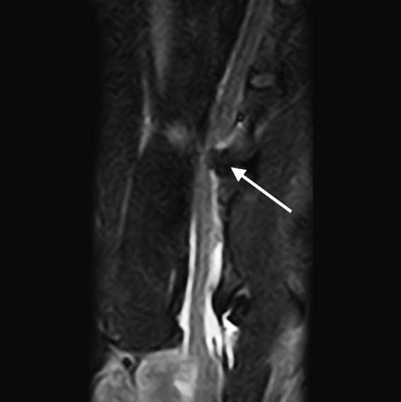 5 - Studio RMN - Midollo spinale cervicale, estrusione discale