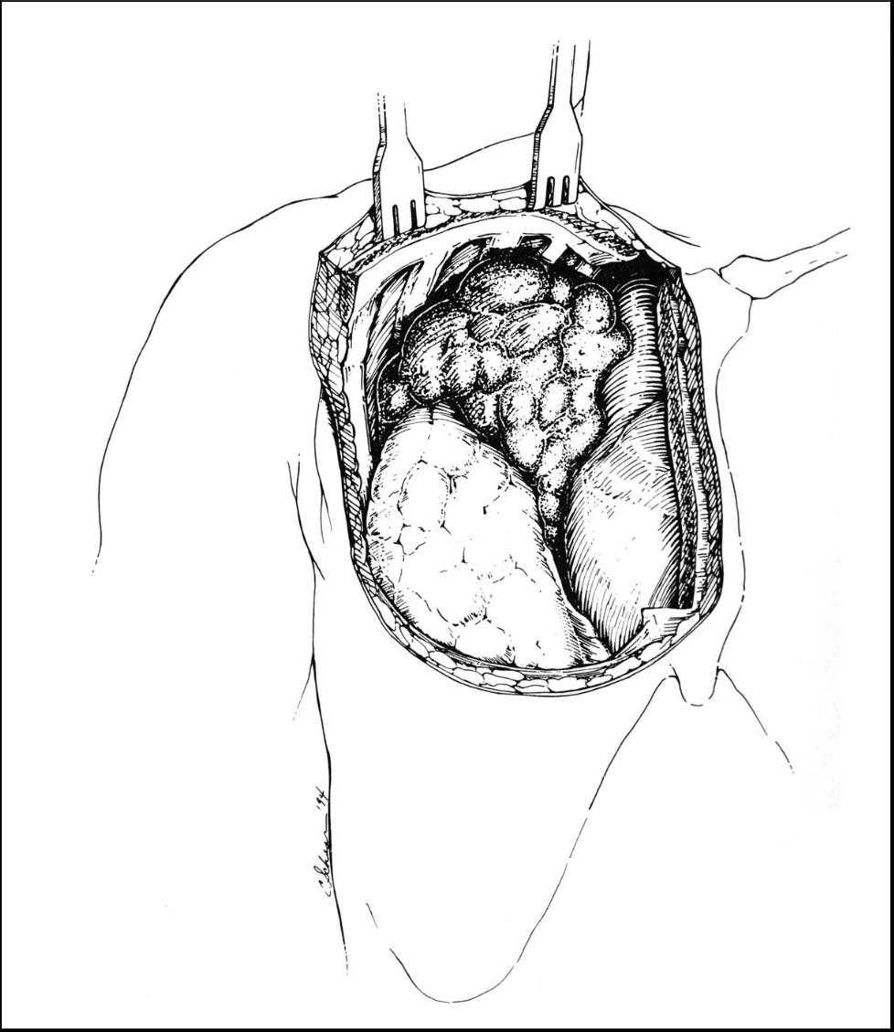 Surgical Management of Primary Mediastinal Germ Cell