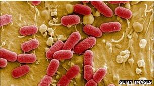 e-coli-alemana