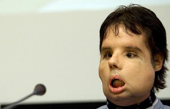 El primer trasplante de cara completa en el mundo fue efectuado el 20 de marzo del 2010 en España por treinta médicos durante 24 horas. El nombre del paciente, Óscar, se dio a conocer al público tan solo unos meses después del trasplante. Óscar habló en varias conferencias de prensa, mostrando a todos su nueva apariencia.