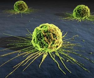 Imagen-de-un-cáncer