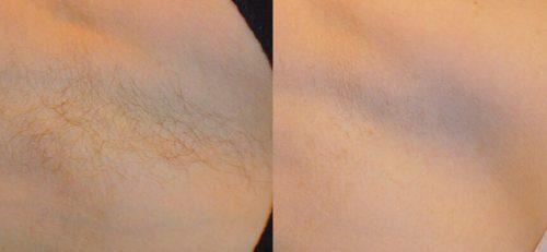 depilacion-laser-axila