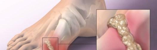 acido urico articulaciones