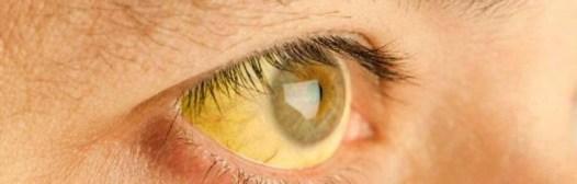 ojos amarillos ictericia