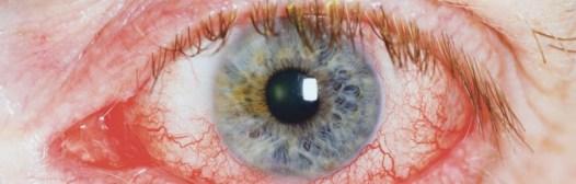 venas varicosas ojos