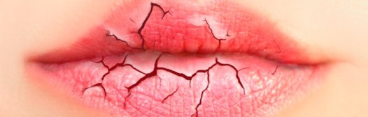labios agrietados remedios caseros
