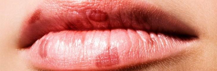 Manchas oscuras en labios