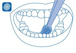 Local especial: Interior dos dentes anteriores inferiores(Face lingual)