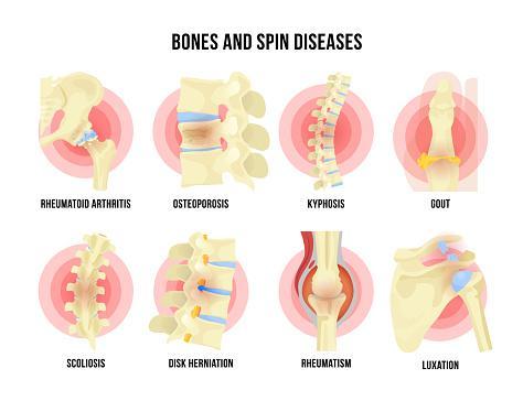 rheumatism, arthritis, spondylosis, osteoporosis