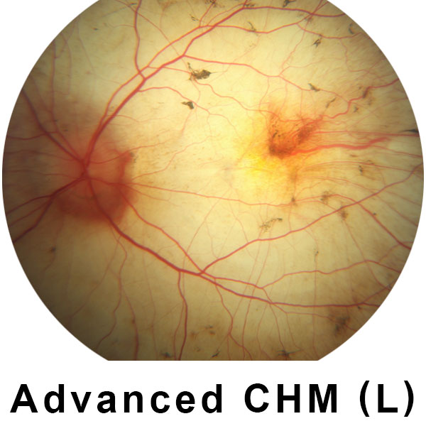 Retina with Advanced CHM