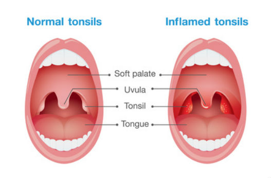 Normal Vs Enlarged Tonsil