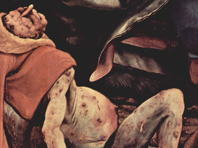 Survivre à la Renaissance : les maladies qui décimaient le peuple