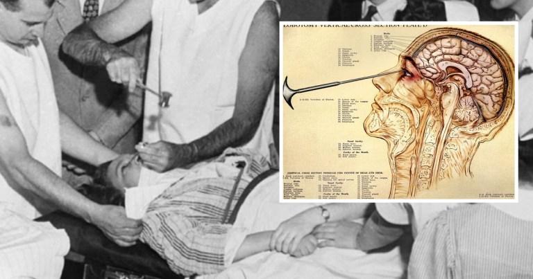 La fureur lobotomiste : Histoire de la lobotomie et de la leucotomie