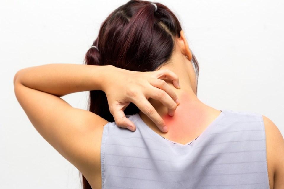 La temperatura y el uso de productos muy fuertes para la piel pueden agravar los síntomas de la dermatitis atópica