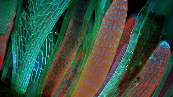 Magdalena Turzańska, da Universidade da Breslávia, capturou esta bela imagem de Lepidozia reptans, ou Hepática folhosa.