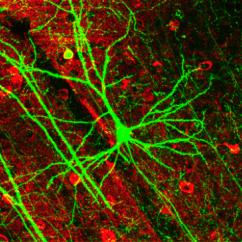 Blank Diagram Of Synapse Vauxhall Vivaro 2016 Radio Wiring Neurônios Artificiais Podem Substituir Alguns Reais Em Seu Cérebro | Curiosidades