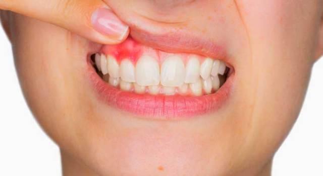Treatment of Gum Diseases