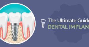 Dental Implants Guide