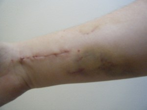 My wrist when the cast first came off. YUCK.