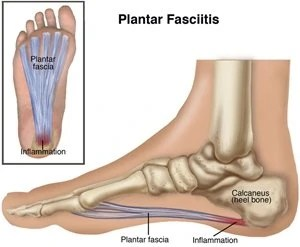 Fix Your Plantar Fasciitis!