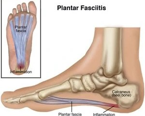 drawing of the plantar fascia