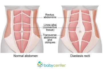 diastasis rectus abdominis