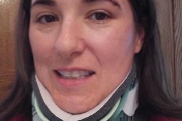 me and my broken neck