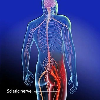 Fix Your Sciatica!