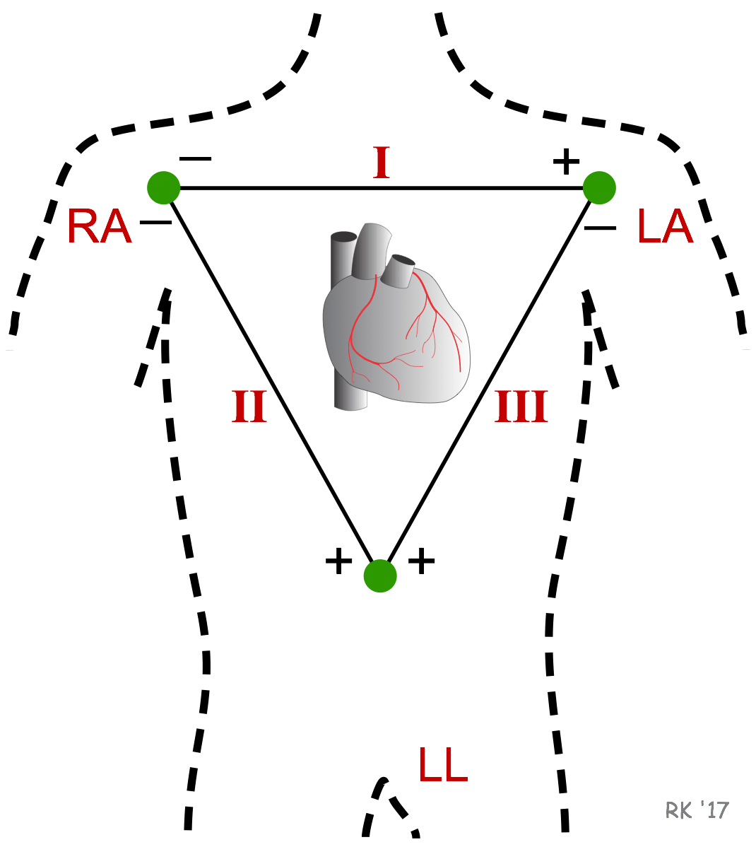 hight resolution of ecg einthoven triangle