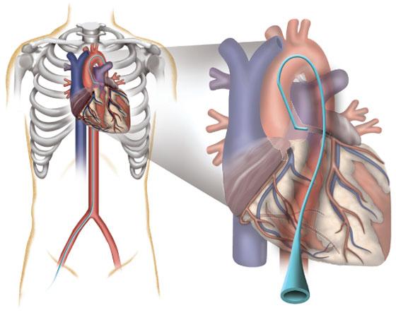 Angiogram Groin Hematoma