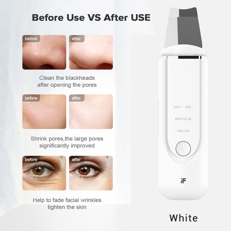 Remove Blackheads with Xiaomi inFace MS7100-3