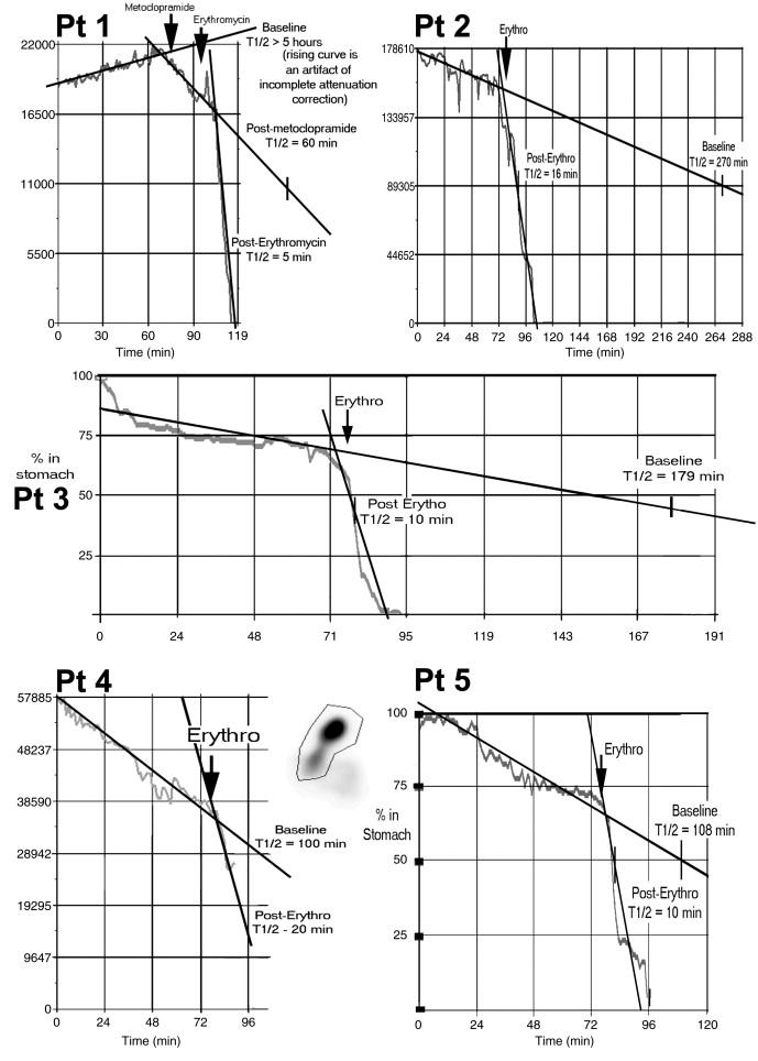 Erythromycin improves gastric emptying half-time in adult