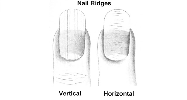 Ridges. What you need to know.