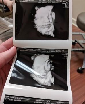 Best ultrasound ever!