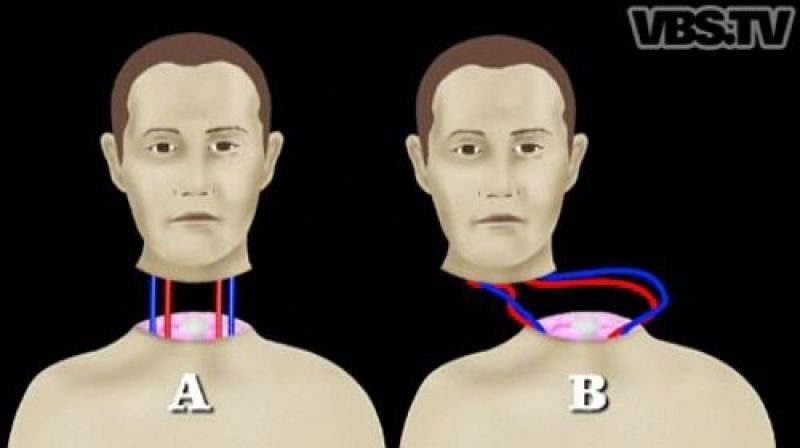 Risultati immagini per eseguito primo trapianto di testa umana