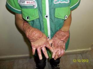 vittime armi chimiche SIRIA