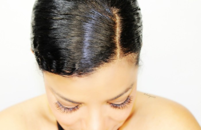 All you need to know about heredity hair loss
