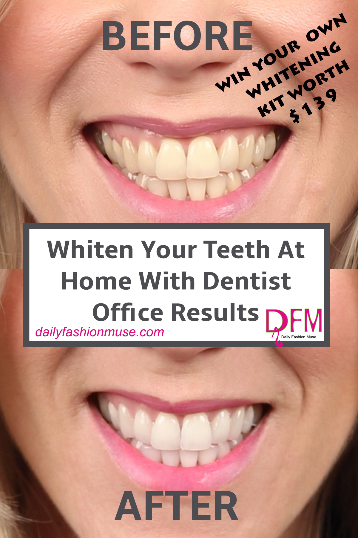Teeth whitening at home is all the rage. Get dentist office teeth whitening results with the Brilliant Smile at home teeth whitening kit. Click through to read my review and enter for a chance to win your own kit.